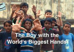 پسری با دست های غول پیکر (۲۰۱۵)