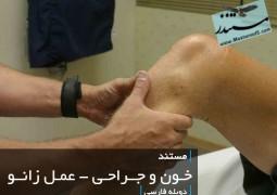 خون و جراحی – عمل زانو (دوبله فارسی)