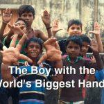 پسری با دست های غول پیکر (2015)