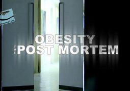 چاقی: کالبدشکافی (۲۰۱۶)